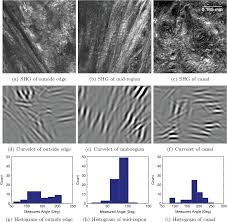 nonlinear optical microscopy and ultrasound imaging of human
