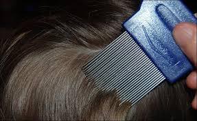Sisir Kutu 8 cara membasmi kutu rambut dan telurnya secara alami