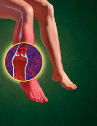 what is deep vein thrombosis what are the symptoms of dvt and how