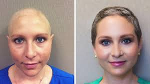 chemo hair loss regrowth om hair