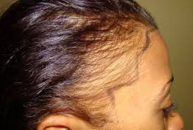 haircut receding hairline women ideas about hairstyles for women with receding hairlines cute