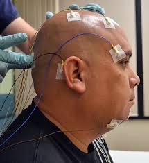 va looks to tighten sleep apnea rating schedule veterans stripes