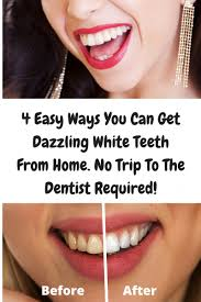 the 4 most effective teeth whitening methods