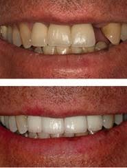 Comfort Dental Independence Eastland Family Dental Independence Mo