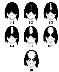 hair transplant calculator before after pictures norwood class 6 hair4ever eu