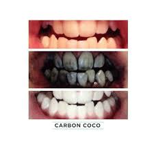 Best Way To Whiten Teeth At Home Activated Charcoal Tooth Polish Carboncoco