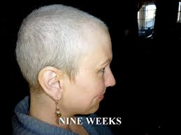 can you color hair after brain surgery anncredible hair growth progression after chemo six months with