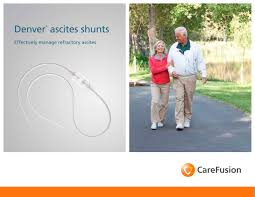 denver ascites shunts carefusion pdf catalogue technical