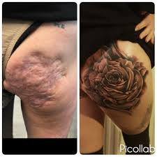 woman with crohn u0027s disease gets tattoo to cover scars the mighty