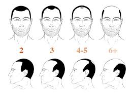 different types of receding hairlines 3 ways to tell if you have fix a receding hairline 2018