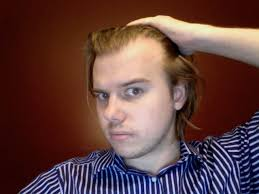 hairstyles for men with a high hairline high hairlines photoon2010 11 11at1446 men hairstyle trendy