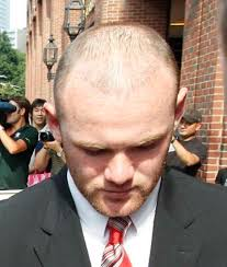 sean coronation street hair tansplant wayne rooney hair transplant was that 30k really money well