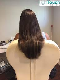 laser hair extensions hair extensions lighttouch laser clinic