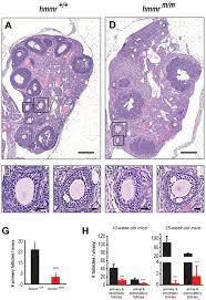rhamm deficiency disrupts folliculogenesis resulting in female