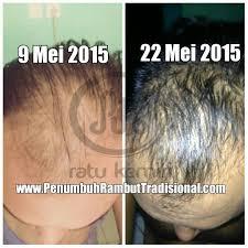 membuat minyak kemiri untuk rambut botak khasiat nyata dari minyak kemiri bakar ratu kemiri
