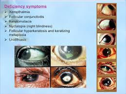 Night Blindness Deficiency Vitamins Reqirement And Deficiencies
