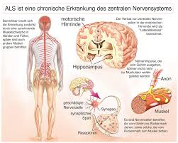 muskelschwäche als symptome amyotrophe lateralsklerose muskelschwäche