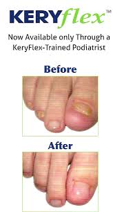 laser nail care fungal infections in office pedicures and