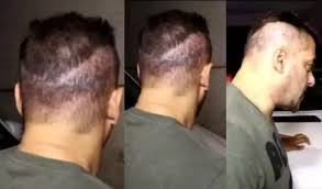 transplant hair second round draft which bollywood stars have gone through hair transplantation after