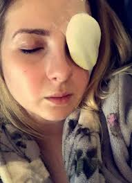 student rips her cornea trying to remove halloween cat eye contact