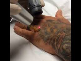 laser tattoo removal for tattoo cover up youtube