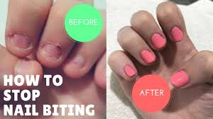 how i stopped biting my nails after 20 years youtube