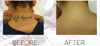 tattoo removal frequently asked questions top 10 commonly asked questions before and after tattoo removal