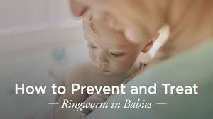 ringworm in babies treatment and prevention