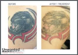 tattoo vanish near me lovely tattoo vanish modern tattoo for everyone