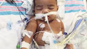 thanksgiving miracle baby denied kidney receives transplant cnn