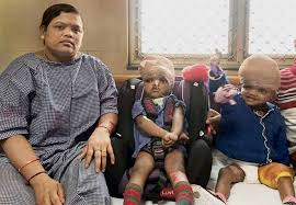 Seeking Conjoined Separated New Year For Odisha Conjoined Jaga Kalia