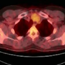 emission 2 cuisine figure 2 hybrid imaging positron emission tomography computed