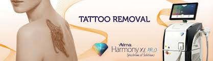 harmony xl tattoo removal u2013 queensway london u2013 michael jane