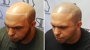 pics of scalp micropigmentation on people with long hair scalp micropigmentation permanent makeup