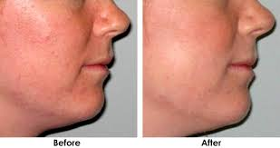 blue light for acne side effects clears or fades acne blemishes in 24 hours effective for treatment