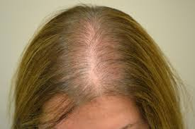 Injection In Scalp For Hair Growth Hair Loss Or Alopecia Factors U0026 Treatments