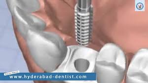 Bridge Dental Cost Estimate by Missing Teeth Cost Hyderabad Dental Implants Supported Bridges