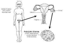 Is It Normal To Have A Light Period Polycystic Ovary Syndrome Symptoms And Treatment Patient