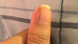 what causes vertical black lines on fingernails dr aruna