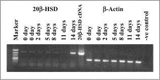 ovarian carbonyl reductase like 20β hydroxysteroid dehydrogenase