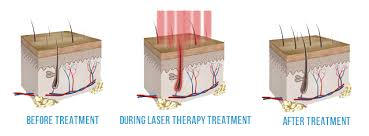 How Does Light Therapy Work Laser Hair Therapy