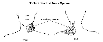 Muscle Spasms Versus Muscle Twitching by Physiotherapy Neck Pain Neck Spasm