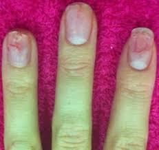 nail art u0026 manicures damage your nails dr debraj shome