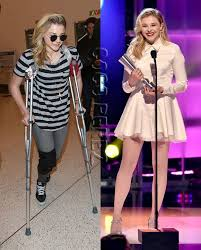 justin bieber and chlo grace moretz dating what if chloë grace moretz ditches the knee brace crutches for a more