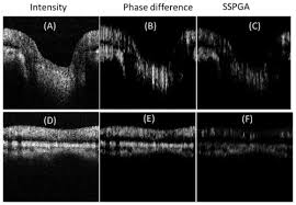 osa split spectrum phase gradient optical coherence tomography