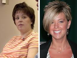 Kate Gosselin before and after photos (image hosted by http://bumpshack.com)