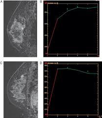 mri guided biopsy breast breast cancer screening in high risk populations radiología