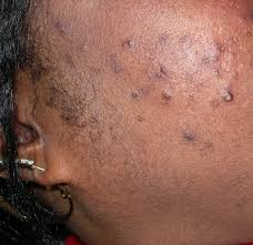 What Do A Bed Bug Look Like What Do Bed Bugs Look Like Bed Bug Treatment Site