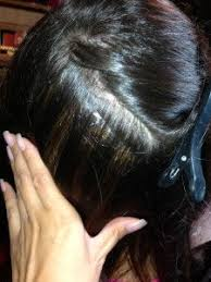 hair styles for trichotellamania hair loss and trichotillomania how to cover up bald patches