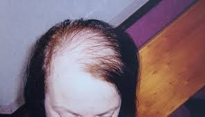 woman with extremely thinning hair could a hair transplant cure your thinning locks growing numbers